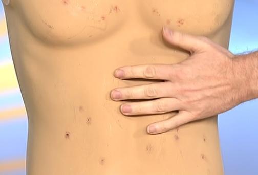 болезнь брюшной тиф