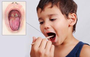 дифтерия у ребёнка фото