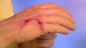 животное укусило руку человека