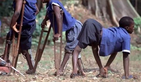 полиомиелит у африканских детей