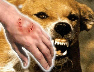 собака укусила человека