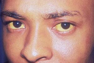 у человека жёлтые склеры