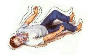 у мужчины эпилепсия рисунок