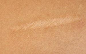 рассасывание рубцов на коже