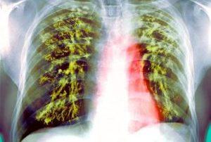 туберкулёз у человека