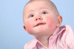 у малыша аллергия
