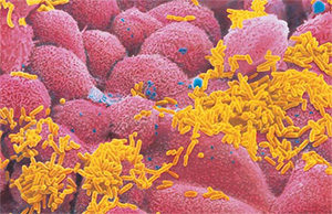 гемофильная палочка под микроскопом