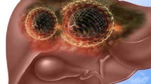 локализация вируса гепатита D