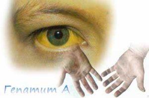 Жёлтые склеры глаз при гепатите A