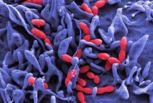 пневмококковая инфекция под микроскопом
