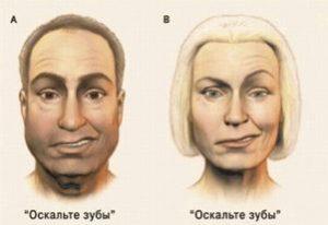 парез лицевого нерва у мужчины и женщины рисунок