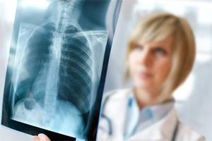 врач рассматривает рентгеновский снимок лёгких человека
