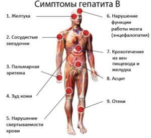 рисунок симптомов гепатита B