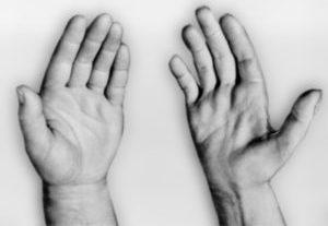 паралич мышц рук