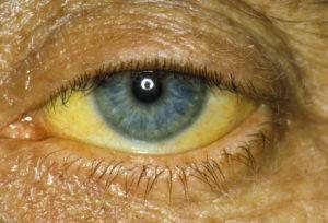 жёлтые склеры глаз