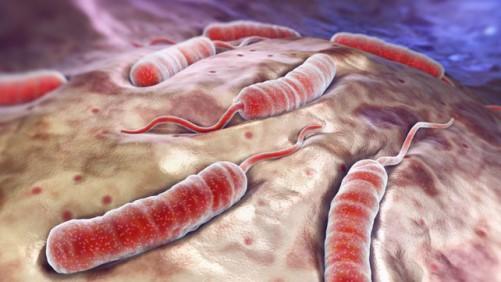 возбудитель холеры рисунок