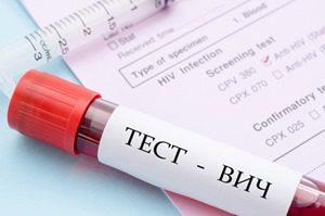 пробирка с кровью для теста на ВИЧ