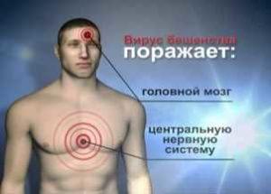 человек, с отмеченными зонами поражения вирусом бешенства