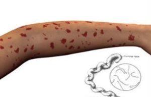 красные пятна на руке больного лептоспирозом