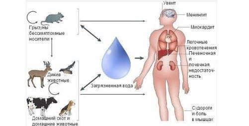 рисунок схемы заражения человека лептоспирозом