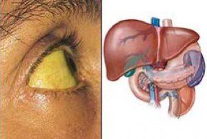 больная печень человека и жёлтые склеры глаз
