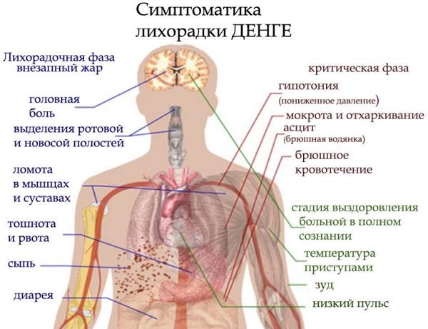 симптомы лихорадки Денге показаны на рисунке человека