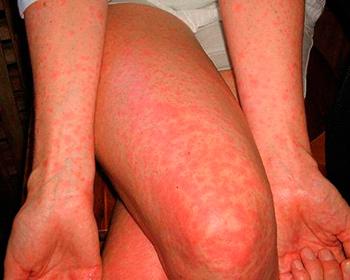 скарлатина симптомы у взрослых фото сыпи