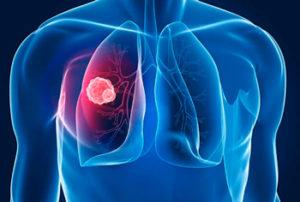 картинка как выглядит туберкулёз лёгких