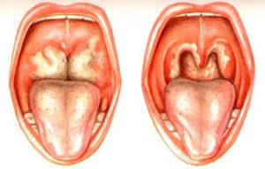 поражение органов дыхательной системы