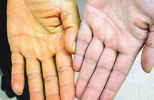симптомы гепатита A