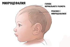 микроцефалия у ребёнка