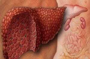 рисунок как выглядит печень после гепатита B