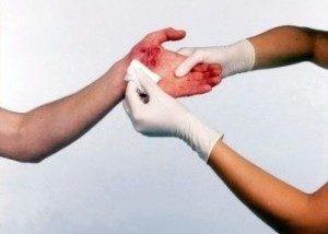 врач обрабатывает рану