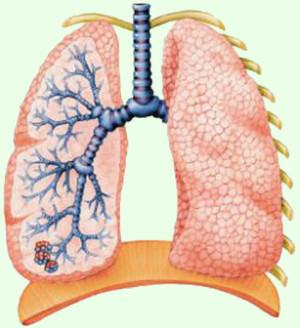 начальная стадия туберкулёза