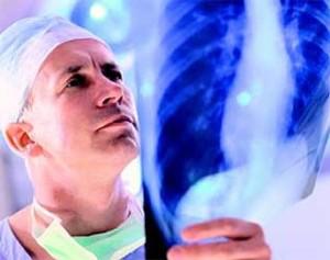 врач рассматривает флюрографию