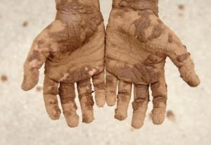 у человека грязные руки