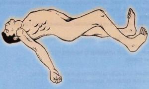 рисунок мужчины больного столбняком