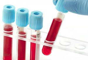пробирки с кровью на анализ