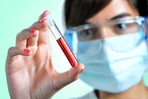 пробирка с анализом крови в руках у врача