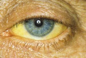 жёлтые склеры глаз при гепатите B