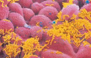 Вакцинация против гемофильной инфекции: схема введения вакцины.