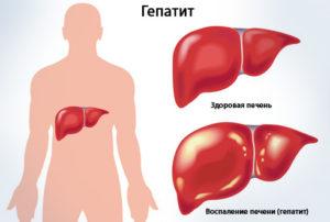 Лечение гепатита б