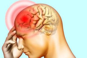 головная боль рисунок