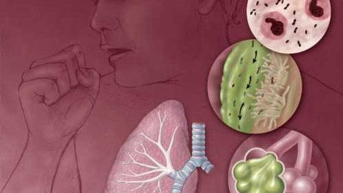 у человека заболевание органов дыхания рисунок