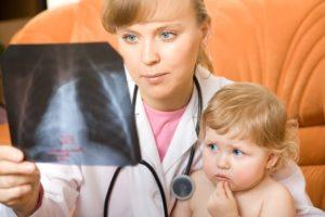 доктор смотрит на рентгеновский снимок лёгких ребёнка