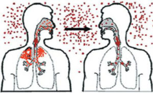 путь передачи пневмококковой инфекции рисунок