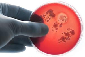 врач держит лабораторное стекло со следами менингококка
