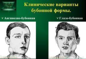 нарисованы люди заражённые туляремией