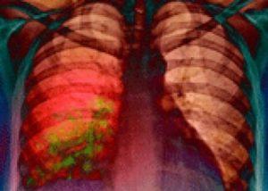 очаги инфекции в лёгких при пневмонии