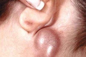 бубон — увеличенный лимфоузел